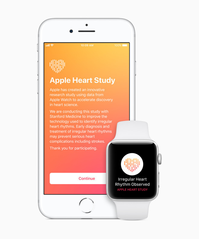 Apple developing advanced EKG heart monitor for future Apple Watch ...