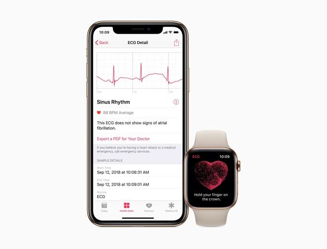 ECG function of Apple Watch Series 4 arrives today in watchOS 5.1.2 update