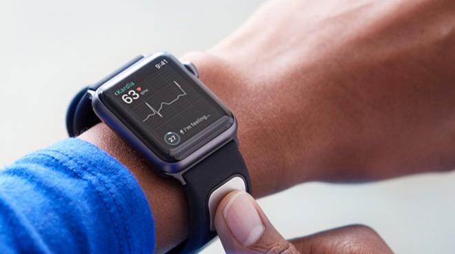 AliveCor KardiaBand Apple Watch