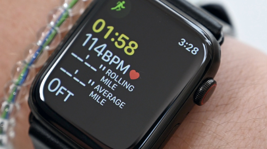 photo of Apple Watch alerts YouTuber to potential tachycardia image