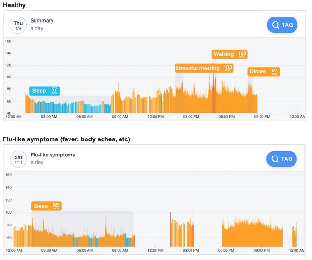 Data from Johnson Hsieh's Cardiogram app, showing differences between sleep during good health and sickness.