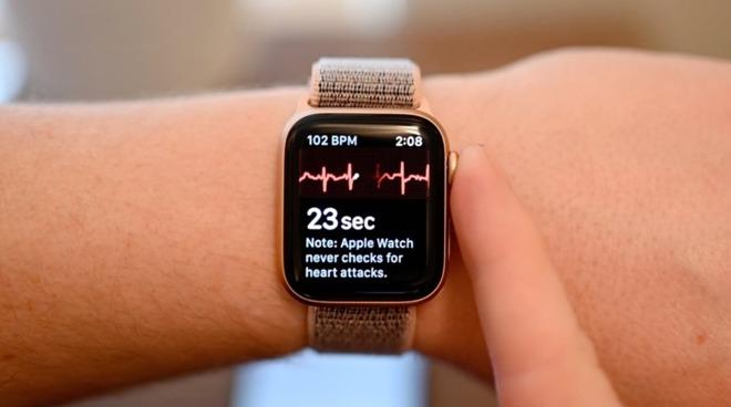 The Apple Watch ECG function