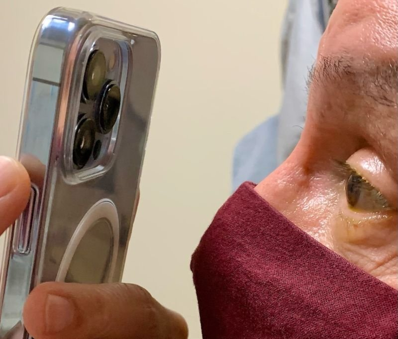 Dr. Korn using an iPhone 13 Pro to snap images of a patient's eyes. Credit: Dr. Tommy Korn